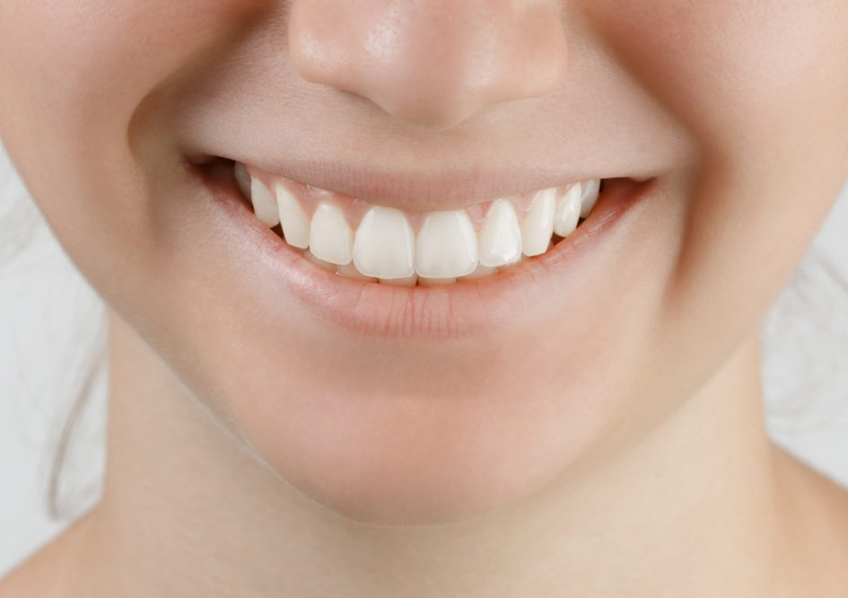 Should My Teen Use Teeth Whitening Agents Pediatric Dentistry Of